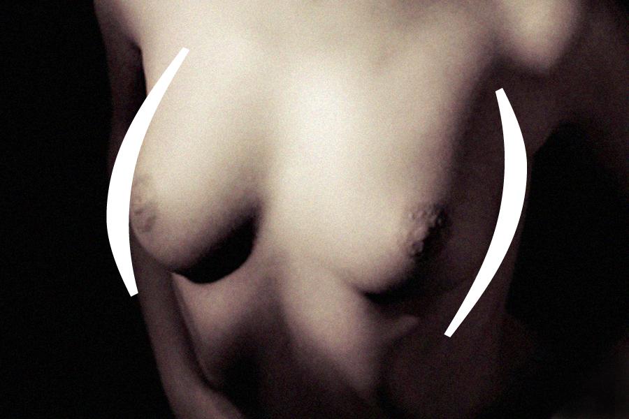 adcd_breast_unit_00